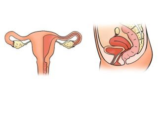 Eileiterschwangerschaft Schmerzen