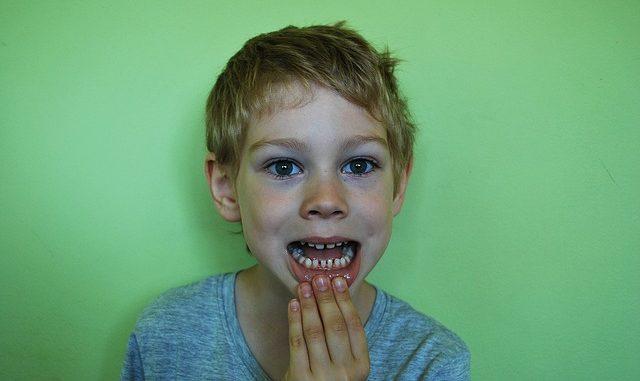Zahnwechsel beim Kind